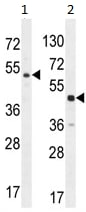 Western blot - DPEP3 antibody (ab107739)