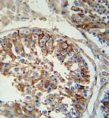 Immunohistochemistry (Formalin/PFA-fixed paraffin-embedded sections) - SPACA1 antibody (ab107976)