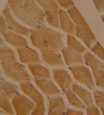 Immunohistochemistry (Formalin/PFA-fixed paraffin-embedded sections) - LMOD2 antibody (ab108022)