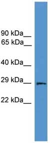 Western blot - Aquaporin 2 antibody (ab108065)