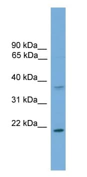 Western blot - GSTM1 antibody (ab108084)