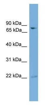 Western blot - GFPT2 antibody (ab108086)