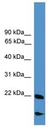 Western blot - RBM18 antibody (ab108100)