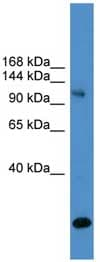 Western blot - UBPY/USP8 antibody (ab108102)