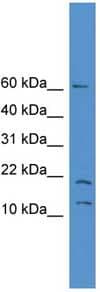 Western blot - SNAPC5 antibody (ab108114)