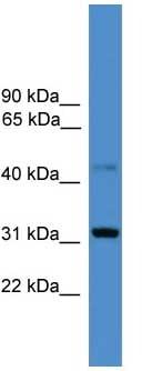 Western blot - CD38 antibody (ab108155)