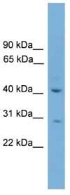 Western blot - HAPLN4 antibody (ab108156)