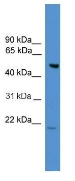 Western blot - ALS2CR12 antibody (ab108161)