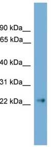 Western blot - Claudin 6 antibody (ab108182)