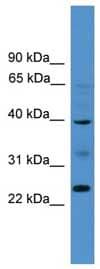 Western blot - BTNL8 antibody (ab108183)