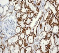 Immunohistochemistry (Formalin/PFA-fixed paraffin-embedded sections) - ACADM antibody [EPR3707] (ab108192)