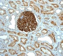 Immunohistochemistry (Formalin/PFA-fixed paraffin-embedded sections) - alpha Actinin 4 antibody [EPR2533(2)] (ab108198)
