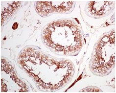 Immunohistochemistry (Formalin/PFA-fixed paraffin-embedded sections) - Angiotensin Converting Enzyme 2 antibody [EPR4436] (ab108209)
