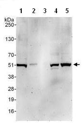 Western blot - KMT3C / SMYD2 antibody (ab108217)