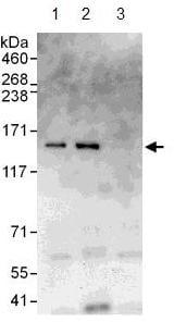 Immunoprecipitation - CYFIP1 antibody (ab108220)