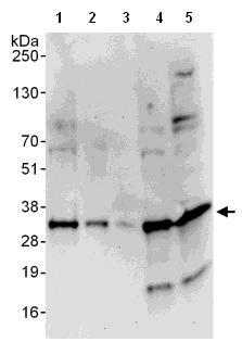 Western blot - Density Regulated Protein antibody (ab108221)