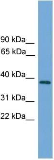 Western blot - C22orf36 antibody (ab108230)