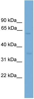 Western blot - MFSD8 antibody (ab108231)