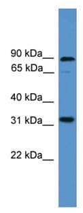 Western blot - Anti-Protein atonal homolog 8 antibody (ab108260)