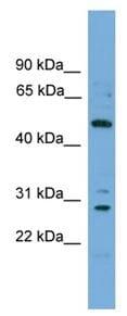 Western blot - ULK3 antibody (ab108261)