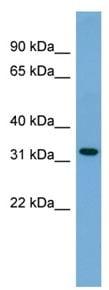 Western blot - GJB3 antibody (ab108285)