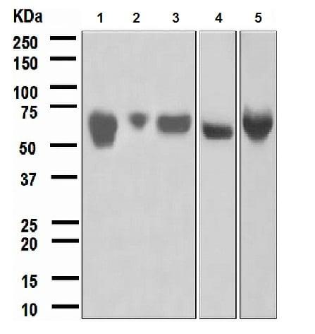 Western blot - Angiotensinogen antibody [EPR2930(2)] (ab108294)