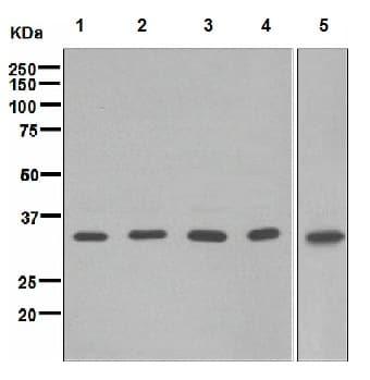 Western blot - BRCC36 antibody [EPR4365] (ab108295)