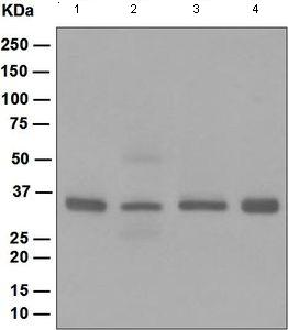 Western blot - Anti-Casein Kinase 1 alpha [EPR1961(2)] antibody (ab108296)