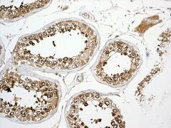 Immunohistochemistry (Formalin/PFA-fixed paraffin-embedded sections) - CD98 antibody [EPR3548(2)] (ab108300)