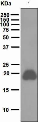 Western blot - CD42a antibody [EPR5295] (ab108304)