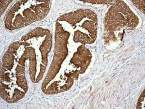 Immunohistochemistry (Formalin/PFA-fixed paraffin-embedded sections)-Anti-CD13 antibody [EPR4058](ab108310)