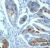 Immunohistochemistry (Formalin/PFA-fixed paraffin-embedded sections) - CD168 antibody [EPR4055] (ab108339)