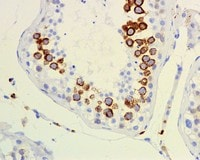 Immunohistochemistry (Formalin/PFA-fixed paraffin-embedded sections) - CD168 antibody [EPR4055] (ab108339)