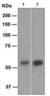 Western blot - Carbonic Anhydrase IX antibody [EPR4151(2)] (ab108351)