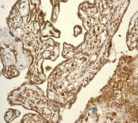 Immunohistochemistry (Formalin/PFA-fixed paraffin-embedded sections) - CSPS antibody [EPR3720(2)] (ab108401)