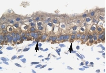 Immunohistochemistry (Formalin/PFA-fixed paraffin-embedded sections) - Anti-SOX10 antibody (ab108408)