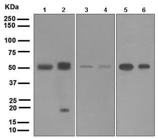 Western blot - BMP15 antibody [EPR5137] (ab108413)