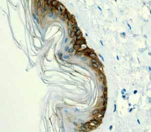 Immunohistochemistry (Formalin/PFA-fixed paraffin-embedded sections)-Anti-Cytokeratin 14 antibody [EPR1612](ab108417)