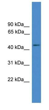 Western blot - GPCR GPR72 antibody (ab108432)