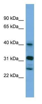 Western blot - PPHLN1 antibody (ab108439)