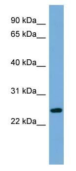 Western blot - FAM164B antibody (ab108440)