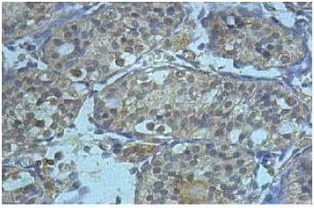 Immunohistochemistry (Formalin/PFA-fixed paraffin-embedded sections) - AHRR antibody (ab108518)