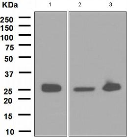 Western blot - Anti-Glutathione S Transferase mu antibody [EPR1936(2)] (ab108524)