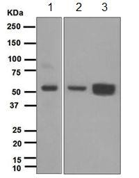 Western blot - MPP1 antibody [EPR5865] (ab108528)