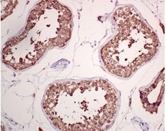 Immunohistochemistry (Formalin/PFA-fixed paraffin-embedded sections) - GRP78 BiP antibody [EPR4040(2)] (ab108613)