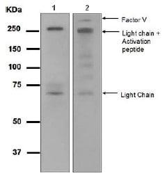 Western blot - Factor V antibody [EPR5191] (ab108614)