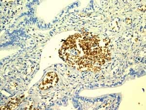 Immunohistochemistry (Formalin/PFA-fixed paraffin-embedded sections)-Anti-Glycophorin C antibody [EPR4116](ab108925)