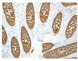 Immunohistochemistry (Formalin/PFA-fixed paraffin-embedded sections) - GPA33 antibody [EPR4240] (ab108938)