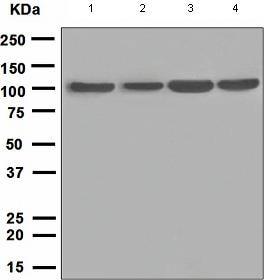 Western blot - PKC mu antibody [EPR1492(2)] (ab108963)