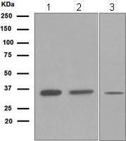 Western blot - SIRT5 antibody [EPR5411] (ab108968)